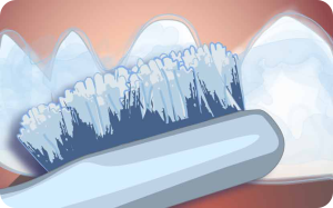 Aplikácia bieliaceho gélu Opalescence