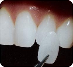 Zubní protéza napevno