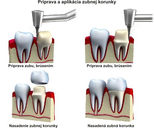 Príprava a aplikácia zubnej korunky